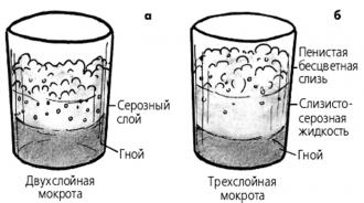 Актуальность проведения анализа мокроты