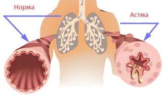 Аллергическая астма симптомы у взрослых