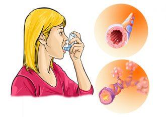Аллергический астматический бронхит
