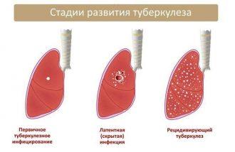 туберкулез стадии