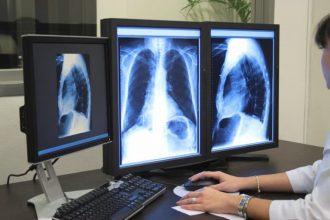 диагностика аспирационной пневмонии