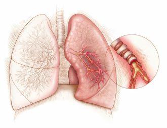 Симптомы и лечение астматического бронхита