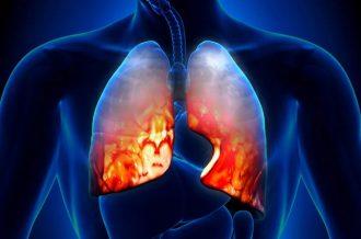 Атипичная пневмония - симптомы