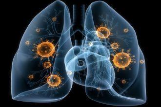 Атипичная пневмония - лечение