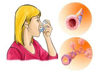 Атопическая бронхиальная астма – лечение и симптомы