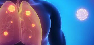 Бактериальная пневмония