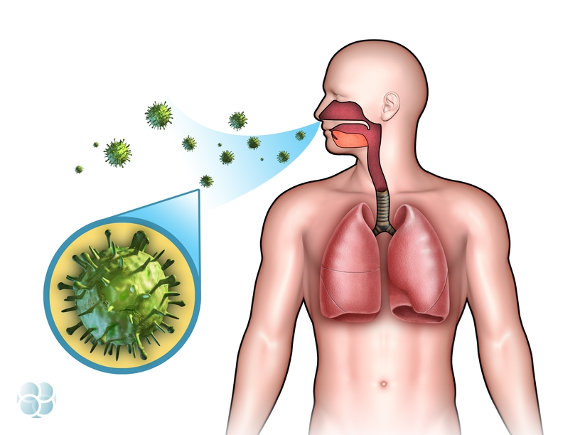 Бактериальный бронхит - симптомы и лечение