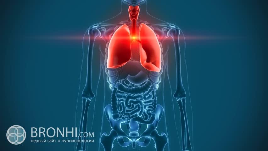 Боли при пневмонии