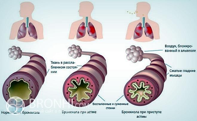 Что такое бронхиальная астма?