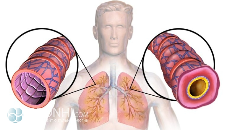 Бронхиальная астма – симптомы