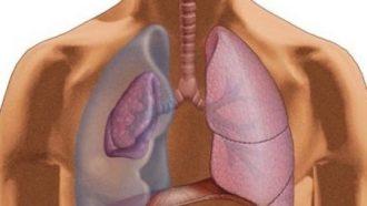 Что такое пневмоторакс?