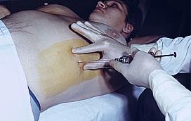 Эпидемиология пневмоний во время беременности