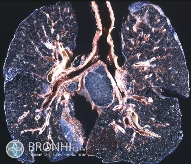 Пневмокониоз-1