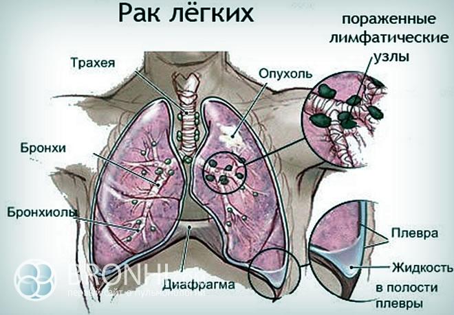 Рак бронхов: симптомы и причины